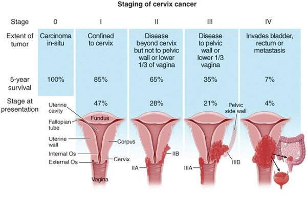 Tiên lượng ung thư cổ tử cung phụ thuộc vào kích thước khối u và giai đoạn bệnh cụ thể