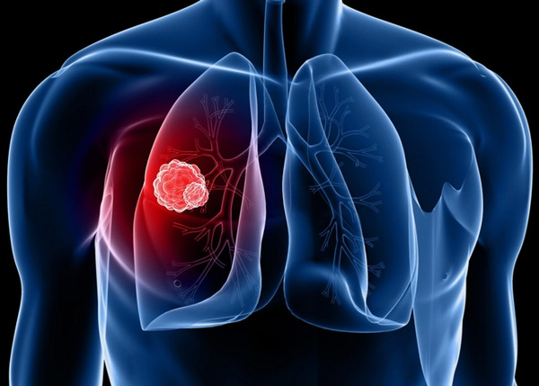 Ung thư phổi được chia thành 2 loại: Ung thư phổi không tế bào nhỏ và ung thư phổi tế bào nhỏ.