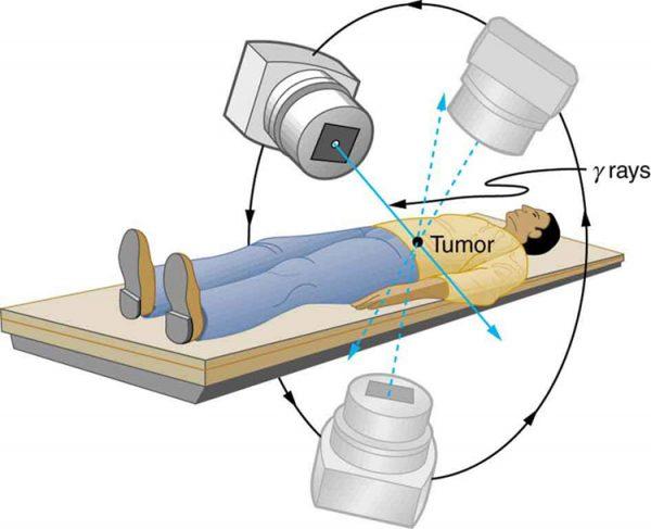 Các phương pháp điều trị ung thư