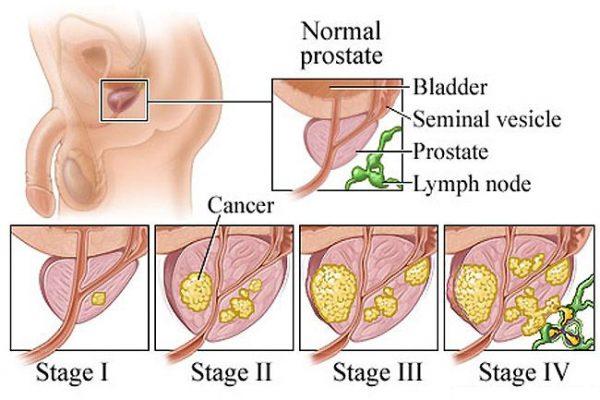 Ung thư tuyến tiền liệt có mấy giai đoạn?