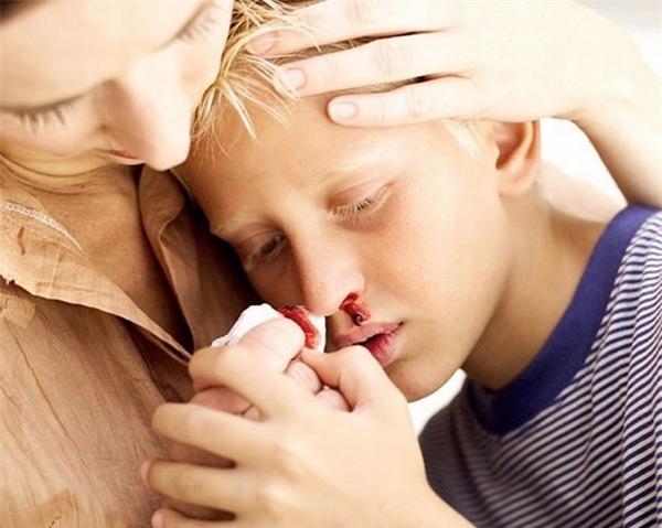 Khi bị ung thư máu, người bệnh sẽ thấy xuất hiện các triệu chứng như chảy máu cam, đốm đỏ xuất hiện trên da