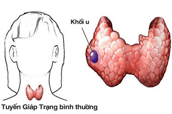 Ung thư tuyến giáp do nhiều nguyên nhân gây ra như nhiễm xạ, thiếu i-ốt...