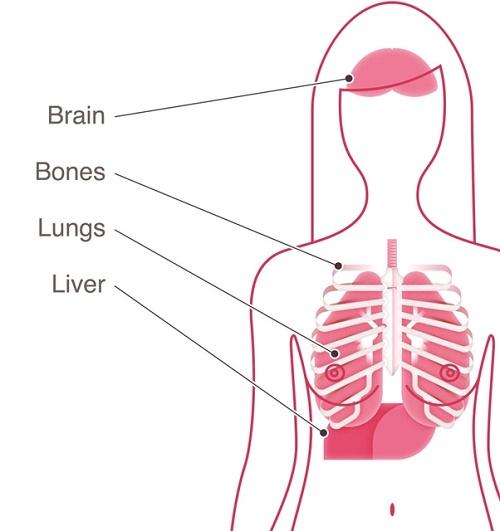 Bệnh ung thư vú giai đoạn cuối chữa thế nào?