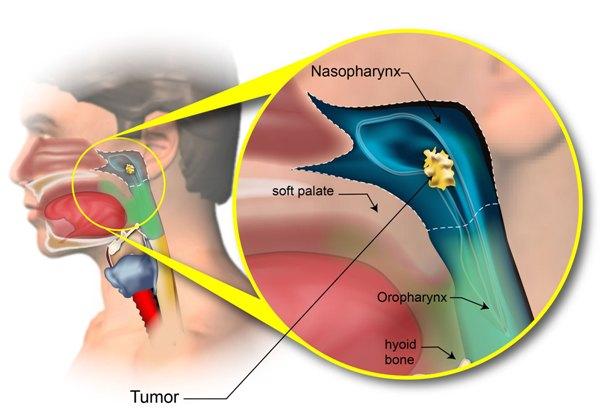 Phẫu thuật ung thư vòm họng