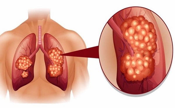 Đừng chủ quan! Ung thư phổi vẫn có thể tái phát