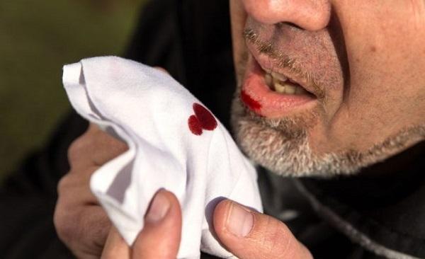 Đờm từ mũi xuống họng có máu là biểu hiện của bệnh gì?
