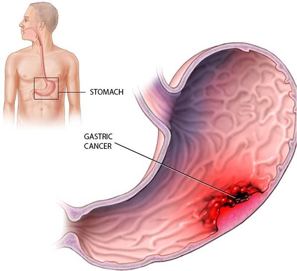 Triệu chứng của bệnh ung thư dạ dày