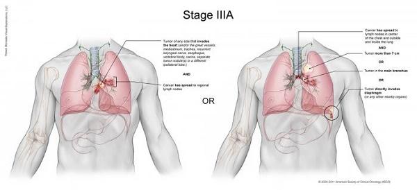 Triệu chứng ung thư phổi giai đoạn 3