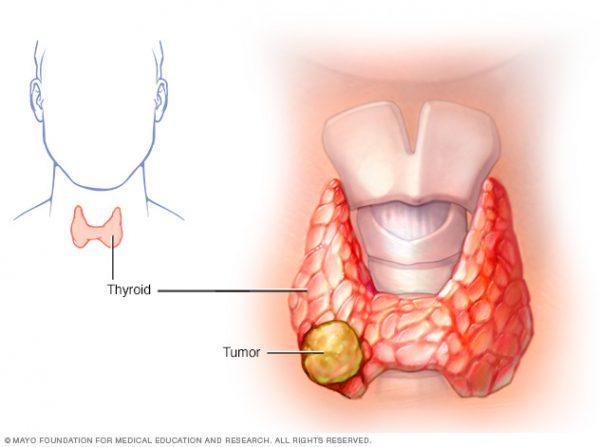 Ung thư tuyến giáp là bệnh ác tính nguy hiểm nếu không được điều trị sớm và tích cực