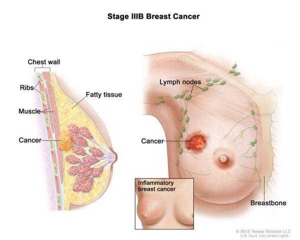 bệnh ung thư vú giai đoạn IIIB