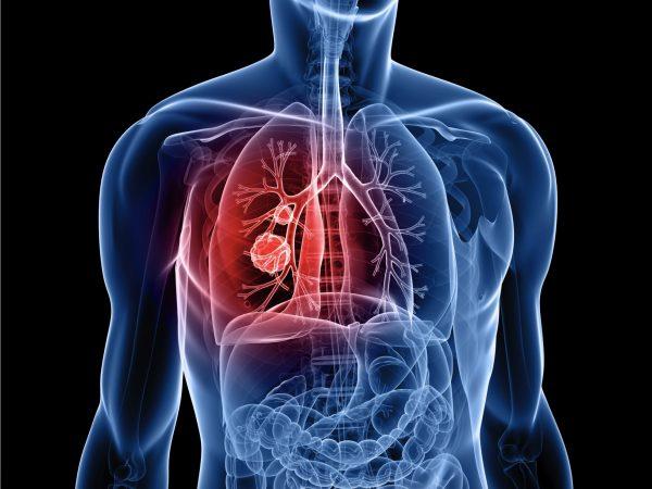 Ung thư phổi được chia làm hai loại chính là ung thư phổi tế bào nhỏ và ung thư phổi không tế bào nhỏ