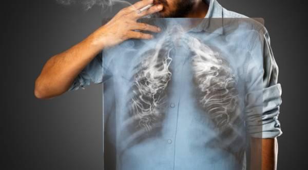 Những người hút thuốc lá, hít phải thuốc lá cần chủ động tầm soát ung thư phổi sớm