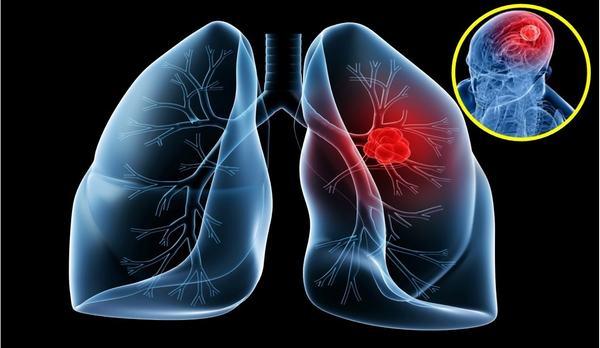Ung thư phổi nếu không điều trị kịp thời có thể gây biến chứng di căn xa tới nhiều vị trí khác