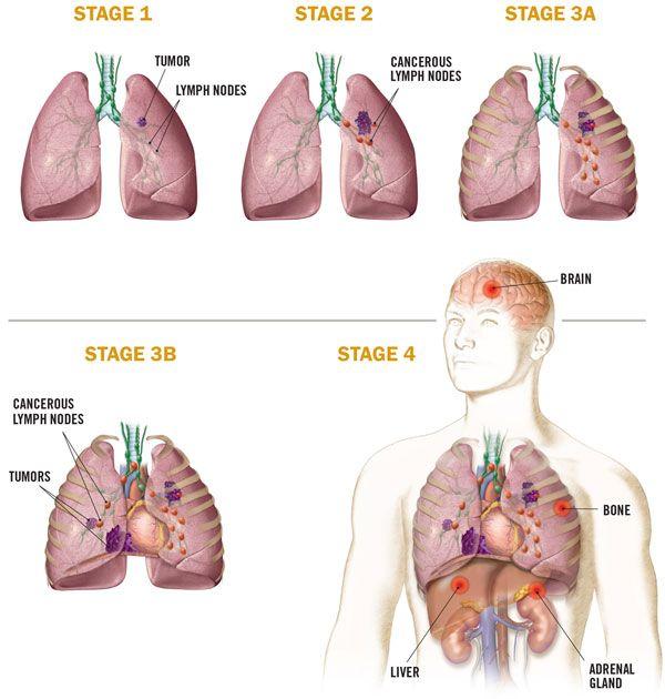 Giai đoạn bệnh ung thư phổi là một trong những yếu tố quyết định đến lựa chọn điều trị bệnh