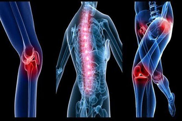 Ung thư phổi di căn xương gây đau tại nhiều vị trí trên cơ thể