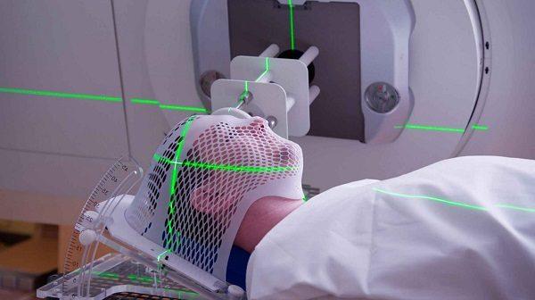 Xạ trị là phương pháp điều trị phổ biến cho bệnh nhân ung thư vòm họng các giai đoạn