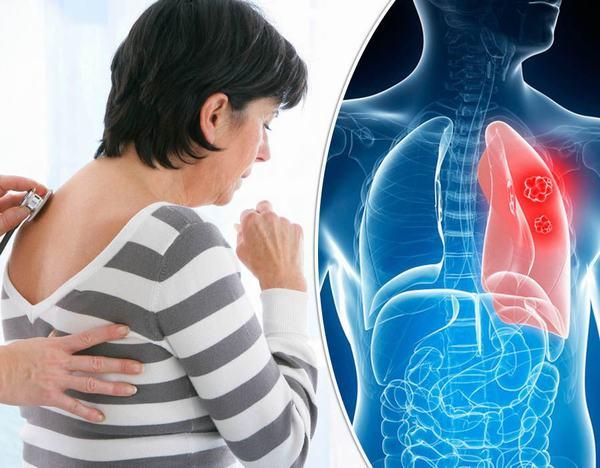 Khi bị ung thư phổi người bệnh cũng thấy xuất hiện triệu chứng ho kéo dài