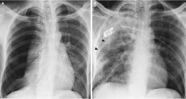 Tràn dịch màng phổi là hiện tượng trong khoang màng phổi chứa nhiều dịch hơn bình thường
