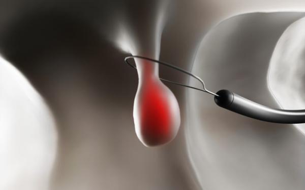 Điều trị polyp như thế nào tùy thuộc vào sự chỉ định của bác sĩ