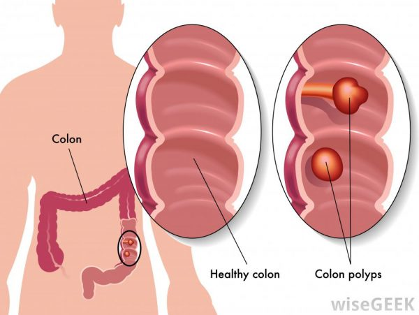 Polyp đại tràng phổ biến hàng đầu trong các loại polyp