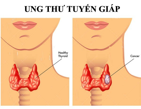 Ung thư tuyến giáp có thể phát hiện qua siêu âm