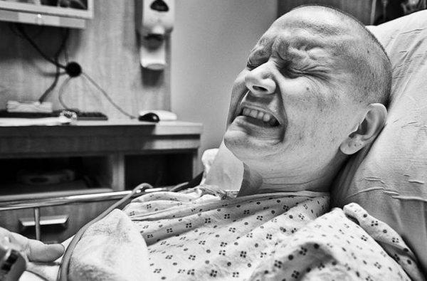 Bệnh nhân ung thư phổi di căn não phải chịu nhiều đau đớn