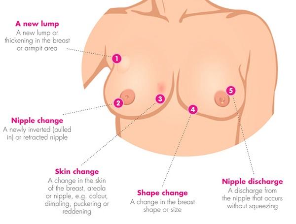 triệu chứng ung thư vú tái phát là gì