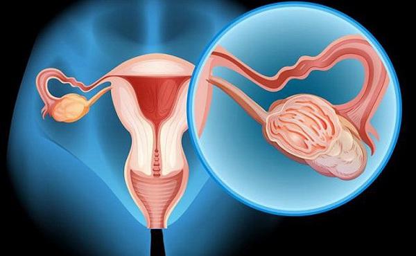 Ung thư buồng trứng là khối u ác tính được hình thành trên bề mặt của buồng trứng