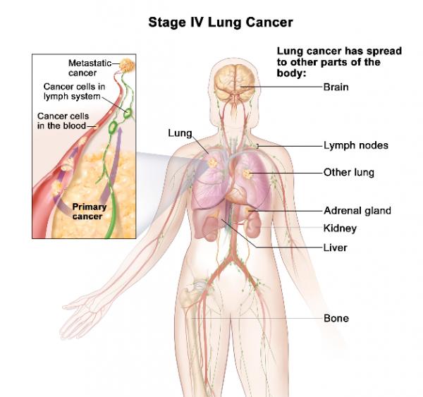 Ung thư phổi giai đoạn cuối có khả năng di căn xương, não, gan, tuyến thượng thận...