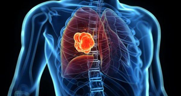 Ung thư phổi tế bào nhỏ chiếm khoảng 15 - 16% ca mắc ung thư phổi