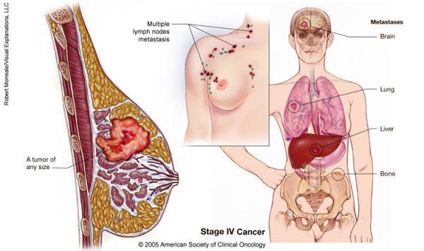 Ung thư vú giai đoạn cuối có khả năng di căn đến nhiều cơ quan ở xa như phổi, não, xương, gan...