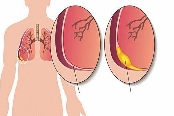 Nếu không phát hiện và điều trị đúng cách, viêm phổi có thể gây biến chứng nguy hiểm