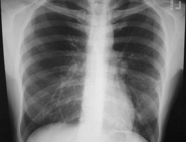 Xơ phổi là tình trạng tổn thương mạn tính, mô sâu bên trong phổi làm cho phổi bị dày