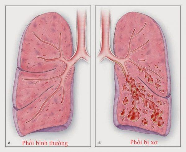 Xơ phổi là bệnh nguy hiểm gây sẹo tiến triển ở phổi