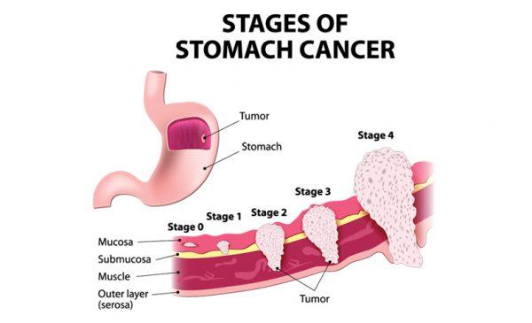 Bệnh ung thư dạ dày giai đoạn II đã phát triển sâu hơn vào lớp cơ thành dạ dày và có khả năng lan đến các hạch bạch huyết