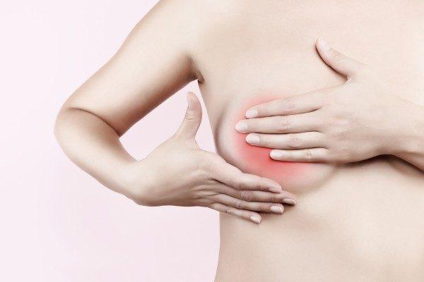 Bướu sợi tuyến vú là bệnh lý tuyến vú lành tính, ít liên quan đến ung thư