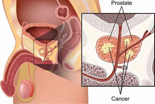 Ung thư tuyến tiền liệt là bệnh nguy hiểm cần được phát hiện và điều trị sớm
