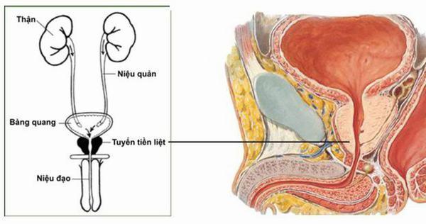 Phì đại tuyến tiền liệt là hiện tượng các tế bào tại tuyến tiền liệt bị phình to bất thường, gây áp lực lên bàng quang và niệu đạo