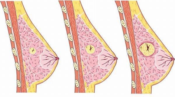Ung thư vú là bệnh nguy hiểm nếu không được phát hiện và điều trị sớm