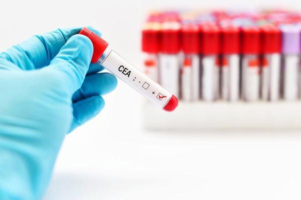 Chỉ số CEA là chất chỉ điểm ung thư được tìm thấy trong máu của người mắc bệnh
