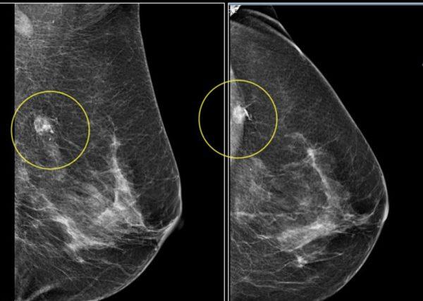 Tầm soát ung thư vú