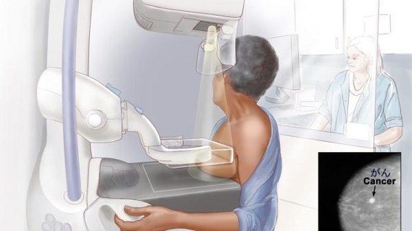 Chụp X quang tuyến vú phổ biến trong tầm soát ung thư vú