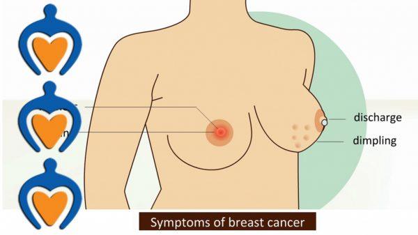 Hãy cảnh giác với bệnh ung thư vú nếu có biểu hiện bất thường đi kèm khác như núm vú tiết dịch, sưng đỏ...