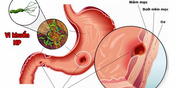 Nhiễm vi khuẩn HP là thủ phạm chính gây ra những cơn đau ở dạ dày