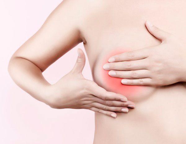 Đau, sung vú là một trong những biểu hiện thường thấy ở bệnh nhân có u xơ
