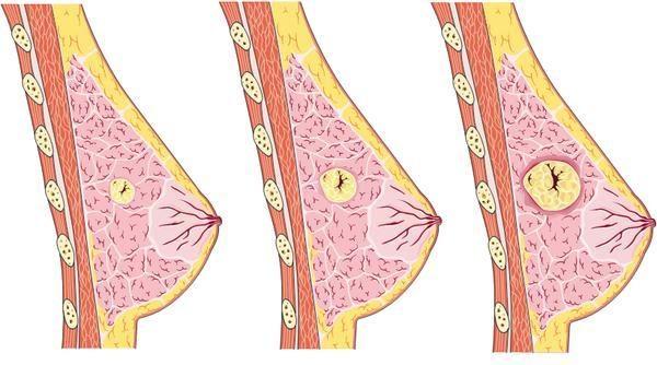 U xơ tuyến vú là bệnh lý lành tính nhưng luôn gây lo lắng cho nữ giới do nghi ngại chuyển biến thành ung thư