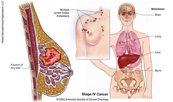Ung thư vú giai đoạn cuối có khả năng di căn đến nhiều cơ quan ở xa như xương, phổi, gan, não...