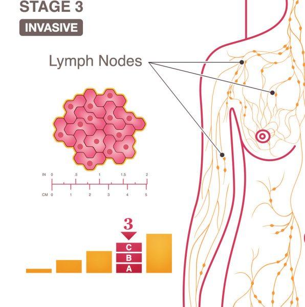 Ung thư vú giai đoạn III