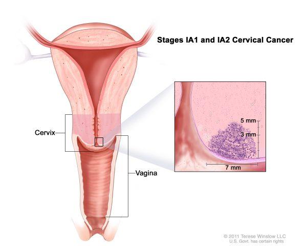 Ung thư cổ tử cung giai đoạn IA