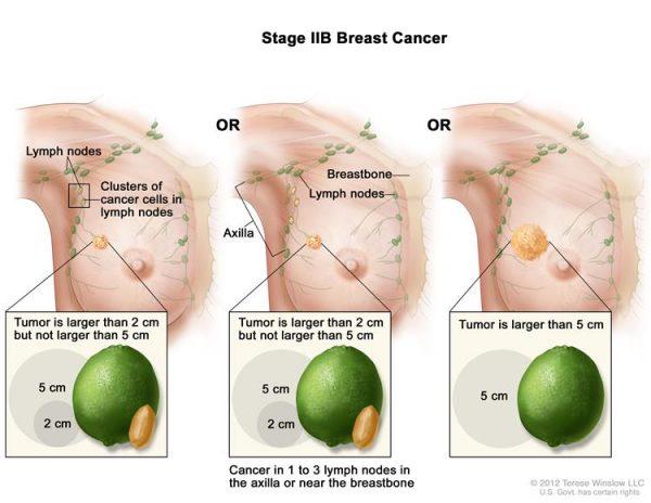 Ung thư vú giai đoạn IIB